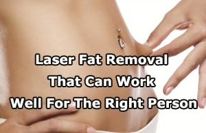 Laser Fat Removal That Can Work Well For The Right Person