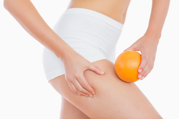cellulite orange peel
